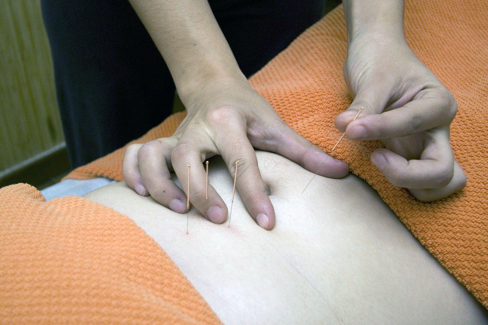 Acupuncture - Holistic List